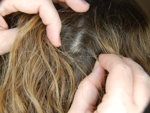 Вас не коснется рак, если у вас есть это в ваших волосах!